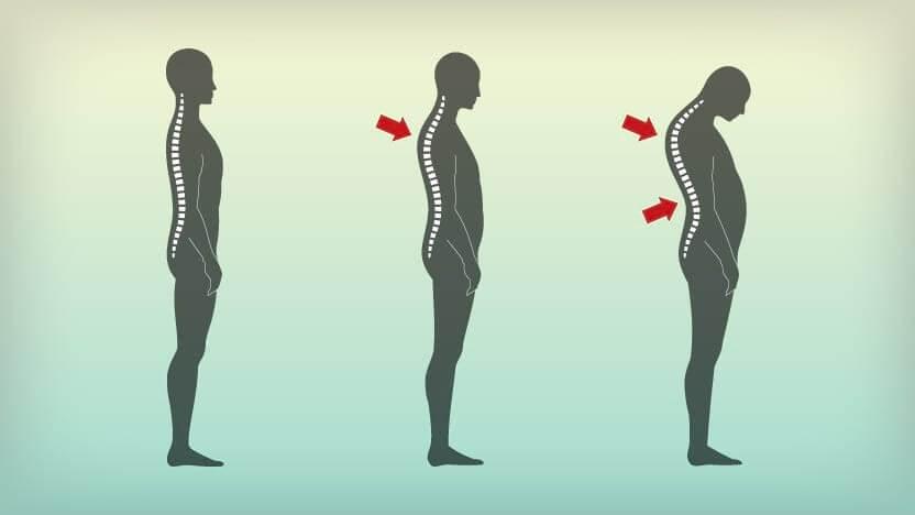 رفع گودی کمر و افزایش قد